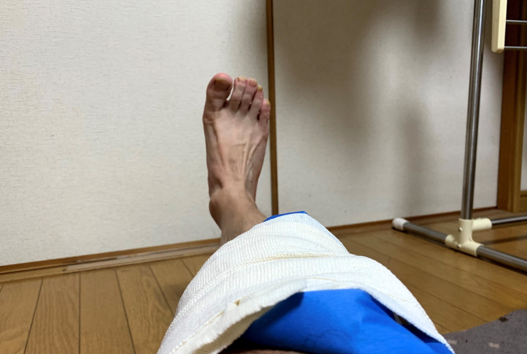 右膝外側の痛みが悪化傾向につき対策を徹底的に検討しよう
