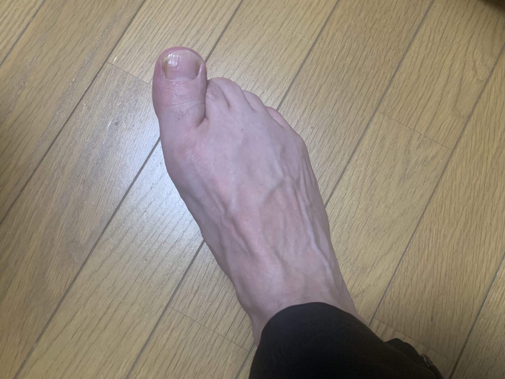 足裏の激痛改善に向けて足指じゃんけんで足裏の動きを強化しよう